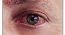 Conjunctivita alergică: simptome, cauze și tratament