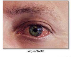 Conjunctivita alergica: simptome, cauze si tratament