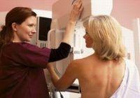 """""""Știam că am noduli la sâni dar am amânat vizita la medic"""". Cât de importante sunt mamaografiile în lupta împotriva cancerului mamar şi de la ce vârstă ar trebui făcute regulat"""