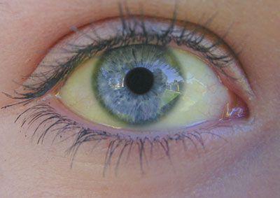 Boli care se pot citi în ochi, cavitate bucală și piele. Detaliile la care să fim atenți