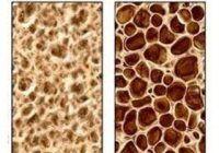 Osteoporoza poate fi prevenită încă din copilărie