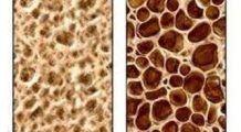 Osteoporoza – un inamic silențios .De la ce vârstă e indicat să vă măsurați masa osoasă?