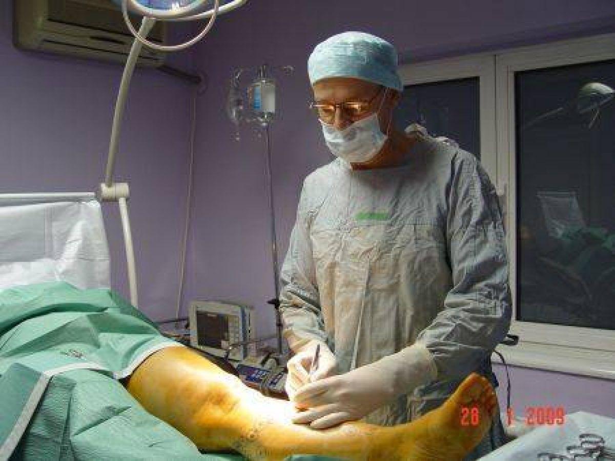 unde este mai bine să operați pe varice