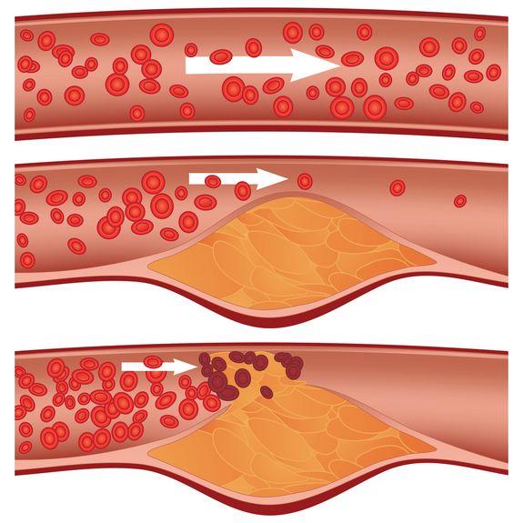 Colesterolul crește cu 15% din cauza exceselor de SĂRBĂTORI, ceea ce mărește riscul de ATAC CEREBRAL. Ce îl aduce în limite normale