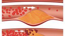 Trei super-alimente la îndemână care elimină grăsimea din sânge