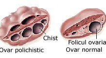 Cât de periculoase sunt chisturile ovariene?