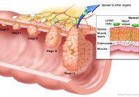 Un nou medicament pentru tratarea cancerului colorectal cu metastaze a fost aprobat în Europa