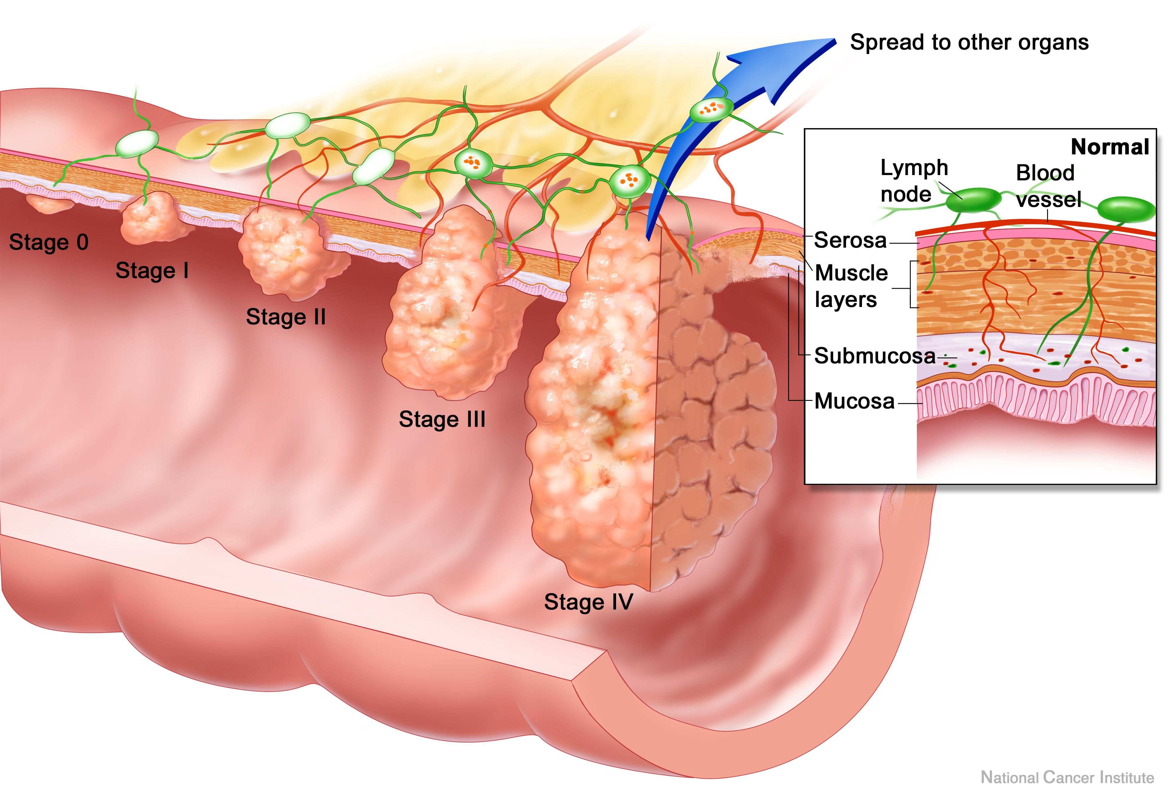 Cum să-ți cureți colonul, ficatul și rinichii de toxine în 48 de ore