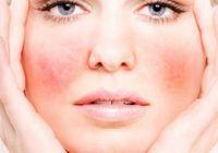 CELE MAI NOI TEHNICI care elimină cuperoza, roşeaţa permanentă din obraji. Plus, de ce nu sunt bune alimentele fierbinți