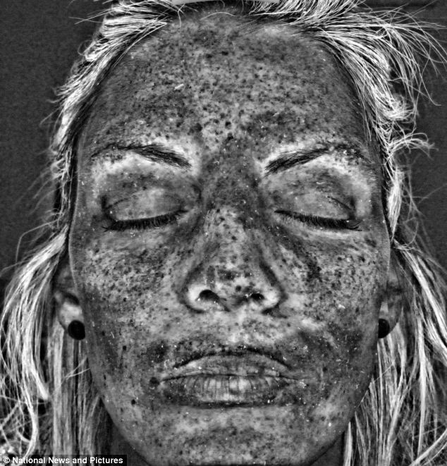 Efectele dezastruoase ale solarului asupra pielii. Cum a fost afectată pielea unei femei după 14 ani de bronzare artificială
