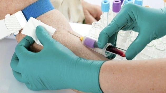 7000 de români și-au făcut până acum testul gratuit de hepatită C. Află unde se fac astfel de teste