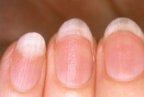 Obiceiul frecvent care distruge unghiile