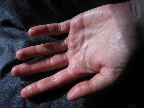 Infuziile care vă scapă de mâinile transpirate
