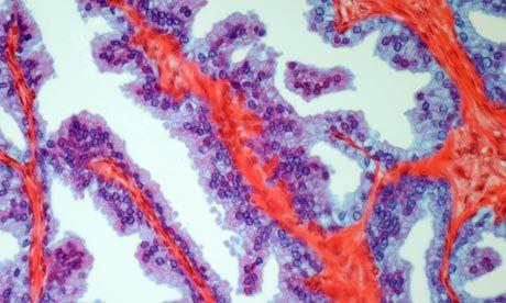 Un simplu test de salivă poate detecta riscul dezvoltării cancerului de prostată, de sân sau ovarian