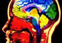 Aparatul care te avertizează dacă urmează să suferi un accident vascular
