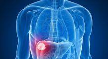 Hormonul sexual masculin care creşte riscul cancerului hepatic