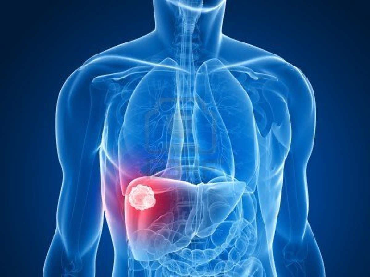 Cancerul de ficat, o boală din ce în ce mai răspândită. Care sunt cauzele acestei situații alarmante