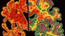 Alzheimerul ar putea fi diagnosticat în faze incipiente datorită unor noi descoperiri