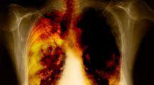 Un singur obicei distruge plămânii încet dar sigur. Provoacă 90% dintre cancerele pulmonare