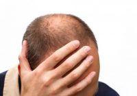 Căderea părului în cazul bărbaţilor poate fi semnul unei afecţiuni grave