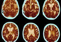 Dieta care ajută memoria și sistemul cognitiv