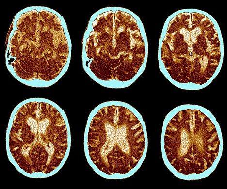 Colesterolul distruge şi creierul nu doar inima