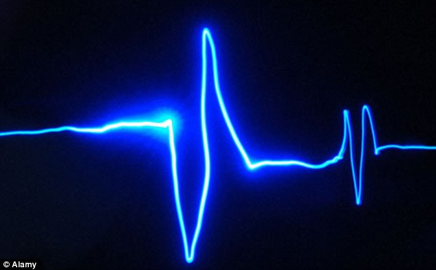 Pulsul crescut triplează riscul de AVC. Iată care sunt valorile normale şi cum îţi poţi măsura singur ritmul cardiac
