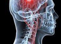Alimentele care previn accidentul vascular mai eficient decât orice medicament