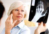 Boala articulațiilor care afectează mai mult femeile. Netratată duce la invaliditate