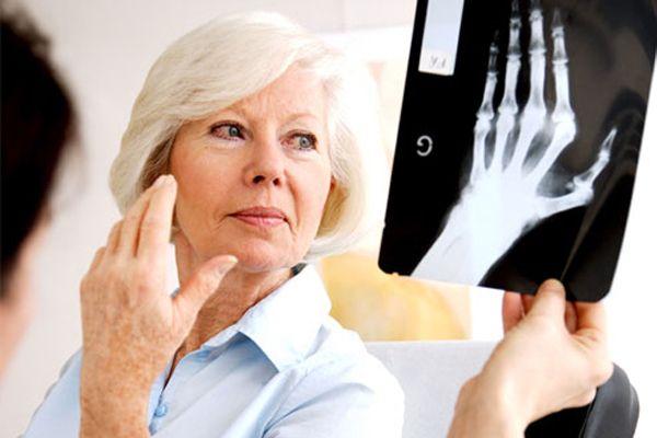 Simptomele cancerului osos, confundate cu cele ale artritei. Ce trebuie să știi despre temuta boală