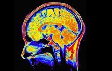 Un faimos neurochirurg a dezvăluit cei 5 PAȘI care asigură succesul în tratamentul tumorilor cerebrale, dar și cum le putem preveni