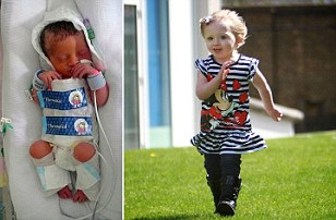 Lily Cracknell, la trei zile după naștere (stânga) și acum. Micuța, în vârstă de trei ani, are încă o greutate mică, dar e sănătoasă
