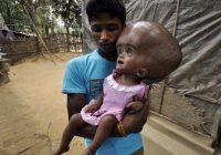 Fetiţa cu cap gigantic a fost operată. Iată cum a decurs intervenţia