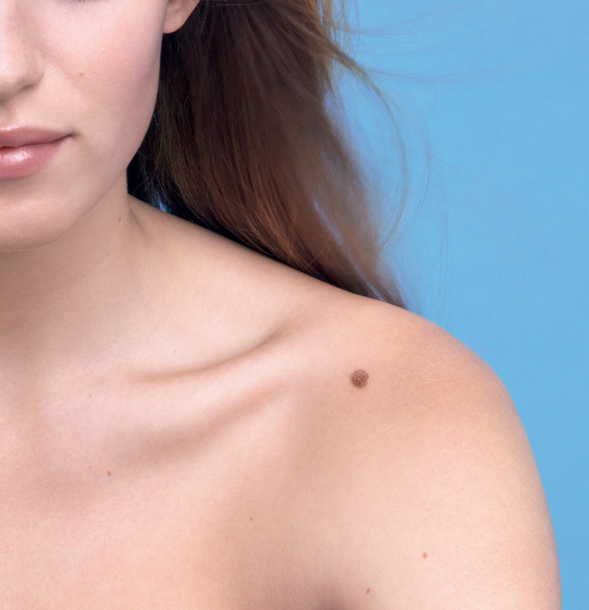 AFLĂ DACĂ AI CANCER DE PIELE. Consultații gratuite la 100 de medici dermatologi din 18 județe