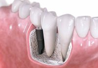 Cine poate apela la un implant dentar?