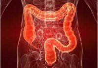 Cancerul de colon poate fi prevenit din adolescenţă cu ajutorul unui aliment