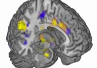Terapie experimentală promiţătoare în cazul sclerozei în plăci