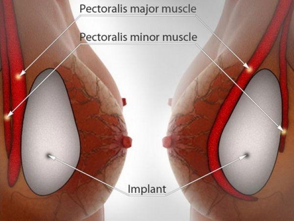 Iată cum trebuie aleasă mărimea implantului mamar