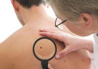 Cancerul de piele poate fi tratat eficient dacă este diagnosticat la timp însă majoritatea oamenilor nu merg regulat la dermatolog și nici nu își verifică alunițele