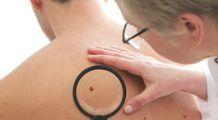 Testări gratuite pentru depistarea cancerului de piele