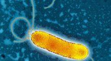 Un metal preţios atacă bacteriile şi poate ajuta la combaterea fenomenului rezistenţei la antibiotice