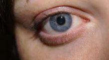 Ce au găsit medicii în ochiul unei adolescente după ce a fost înţepată de un ţânţar