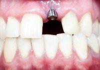 Implant dentar într-o singură ședință