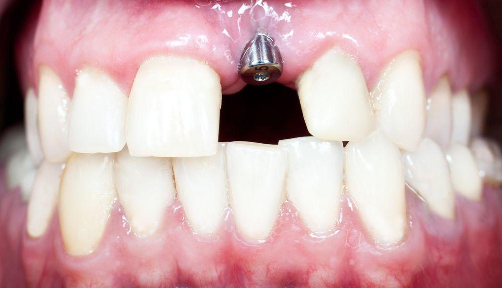 Ce boli riști să faci atunci când alegi un implant dentar ieftin?