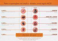 ABCD - schema care vă poate spune dacă o aluniță ar putea ascunde cancerul de piele