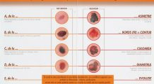 1.100 de români au fost diagnosticați cu cea mai agresivă formă de cancer de piele în 2012. Peste 300 au murit. SCHEMA care îți spune dacă EȘTI LA RISC