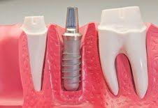 Implant dentar unic în lume, inventat de doi clujeni. Este ideal pentru cei care au pierdut mai mulți dinți