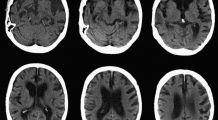 Un nou test poate detecta Alzheimerul cu 10 ani înainte de apariţia primelor simptome