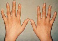 Riscul de artrită poate fi depistat cu ajutorul unui simplu test de sânge
