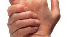 Această boală care distruge articulațiile poate scurta viața cu până la 10 ani. Mergi la reumatolog când observi primele simptome!
